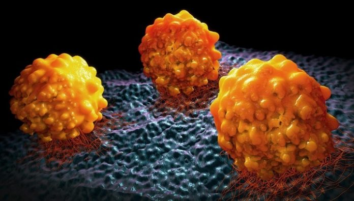 Metastasis cancer can stop the drugs from obesity