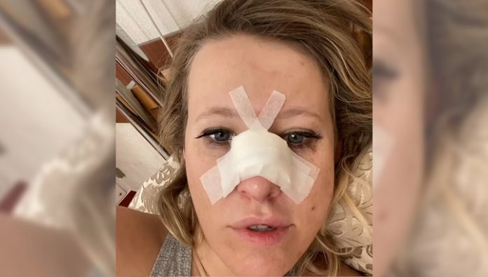 Bad fall: Ksenia Sobchak broke his nose and suffered a concussion