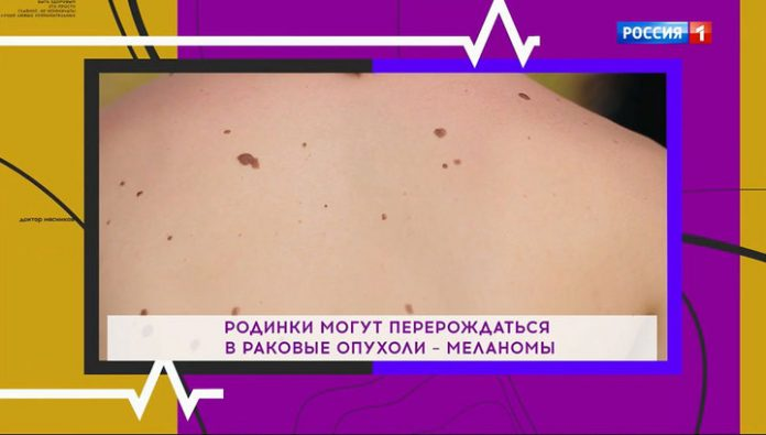 Not cancer is it? Dr. butcher told how to recognize dangerous moles