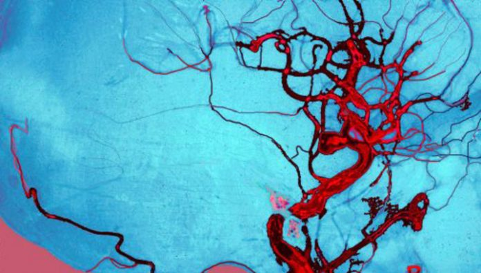 Not only headache: symptoms, indicating rupture of the aneurysm