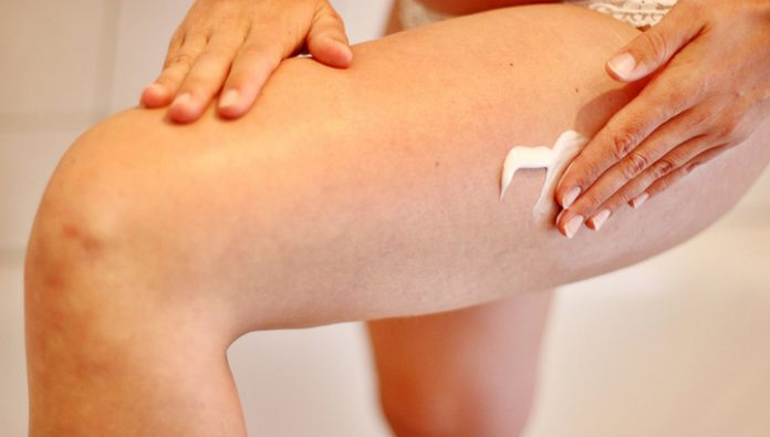 The doctors told how to make cellulite noticeable